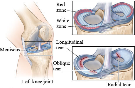 Повреди на менискус